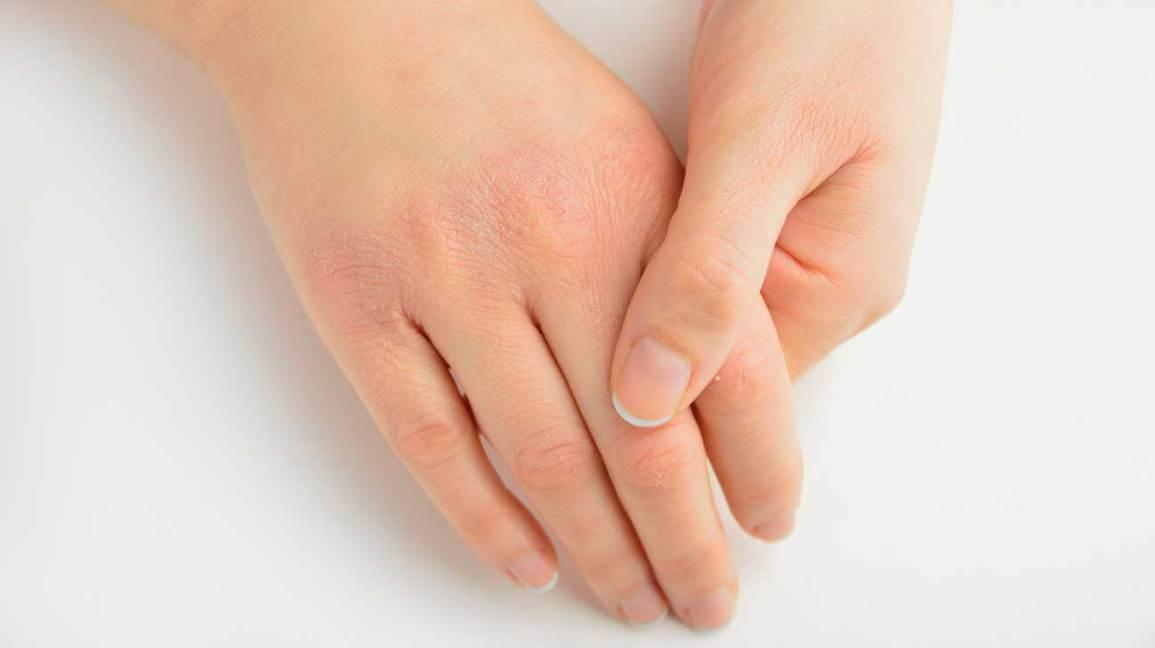 Symptômes d'insuffisance en vitamine A