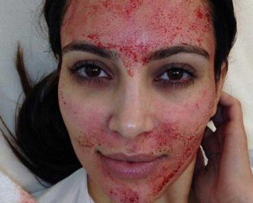 """Kim Kardashian l'a rendu célèbre ... En quoi consiste exactement un """"soin du visage pour vampire""""?"""