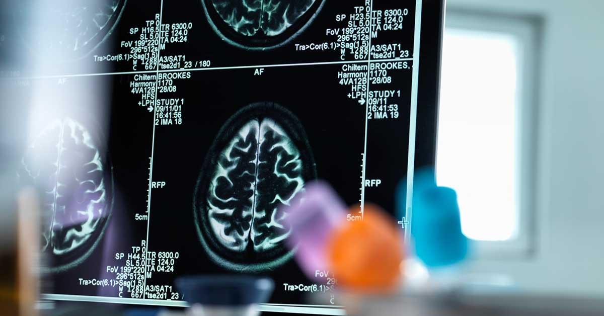 Comment un nouveau test de fer dans le cerveau pourrait révolutionner le traitement de la SP