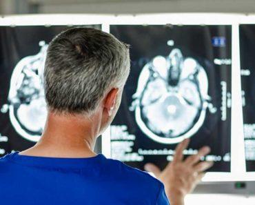 L'excès de fer dans le cerveau peut être un facteur de la maladie d'Alzheimer