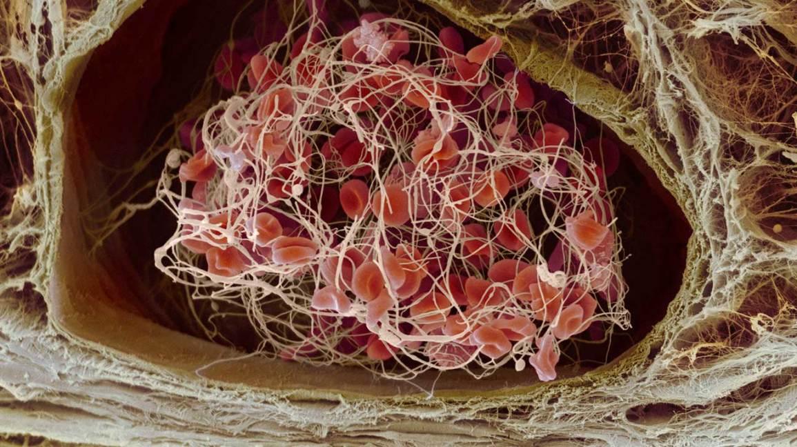 L'hémophilie n'est peut-être plus une maladie à vie