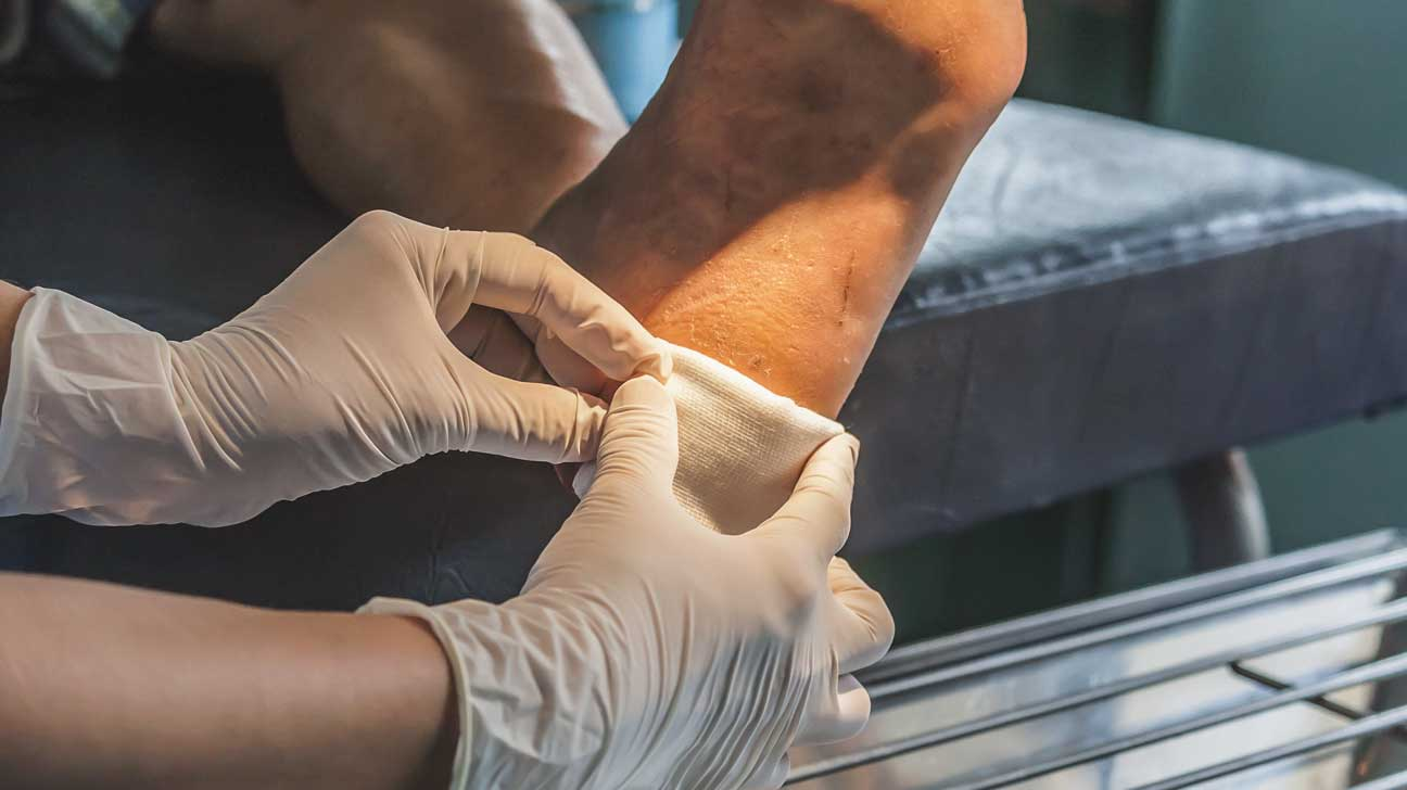 Un nouveau pansement peut aider les plaies à guérir plus rapidement pour les personnes atteintes de diabète