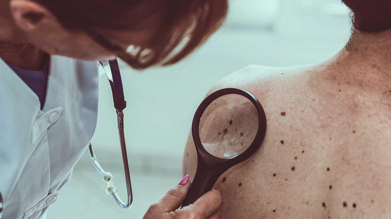 L'IA pourrait mieux détecter le cancer de la peau que votre derme